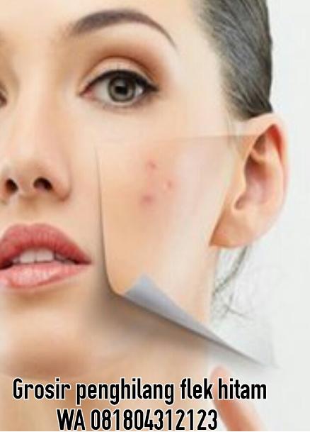 Alergi Kulit Alergi dan Pengaruh Alergen terhadap debu tidak terpengaruh