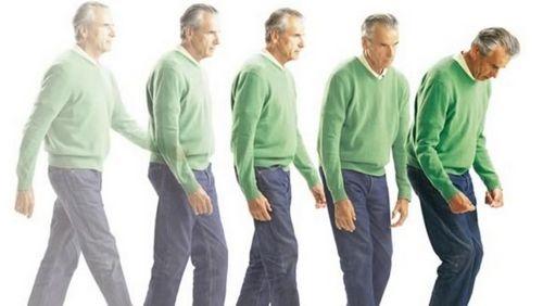 Apa itu Penyakit Parkinson? Parkinson akan tergantung