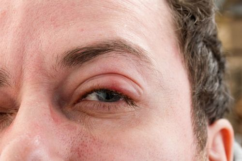 Apa Penyebab Stroke? Cari Tahu Apa Itu dan Cegah Itu Terjadi Gejala ini bisa ringan