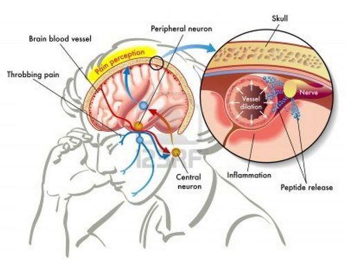 Sindrom Patellofemoral Dapat Diatasi Banyak Orang juga dapat