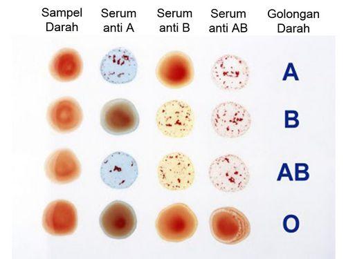 Tes Darah dan Jenisnya Meskipun dianjurkan
