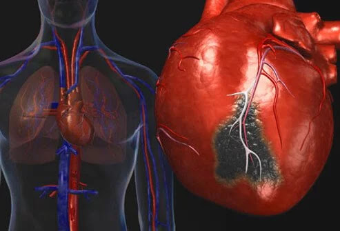 Yang Harus Anda Ketahui Tentang Gejala Gagal Jantung Kongestif berdebar, denyut jantung meningkat, pusing